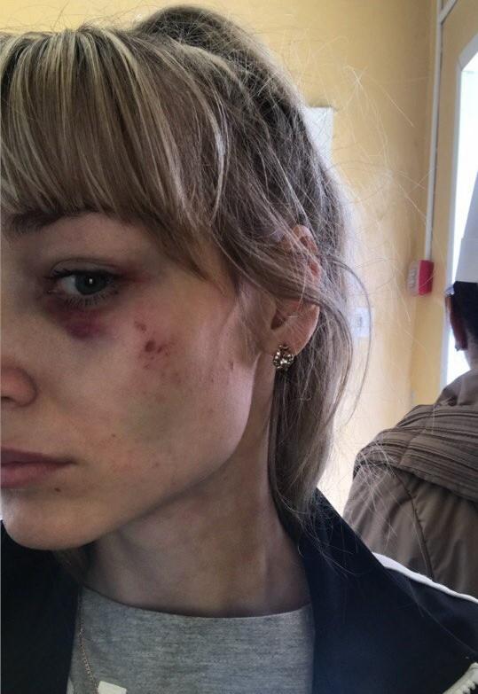 Ирина пожаловалась на жестокость бывшего избранникаФото: Соцсети