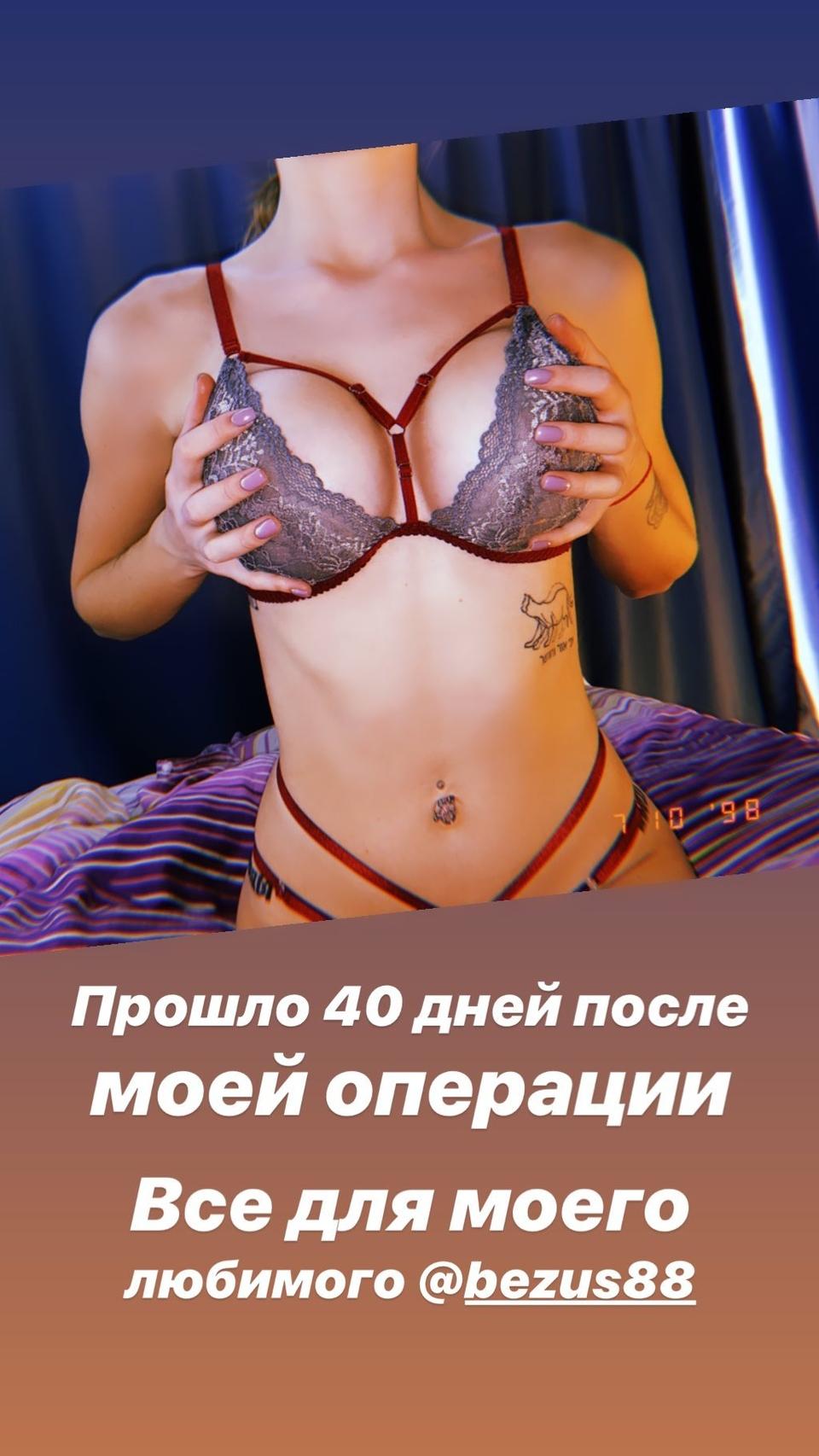 Милена показала грудь вовсей красе Фото: «Инстаграм»