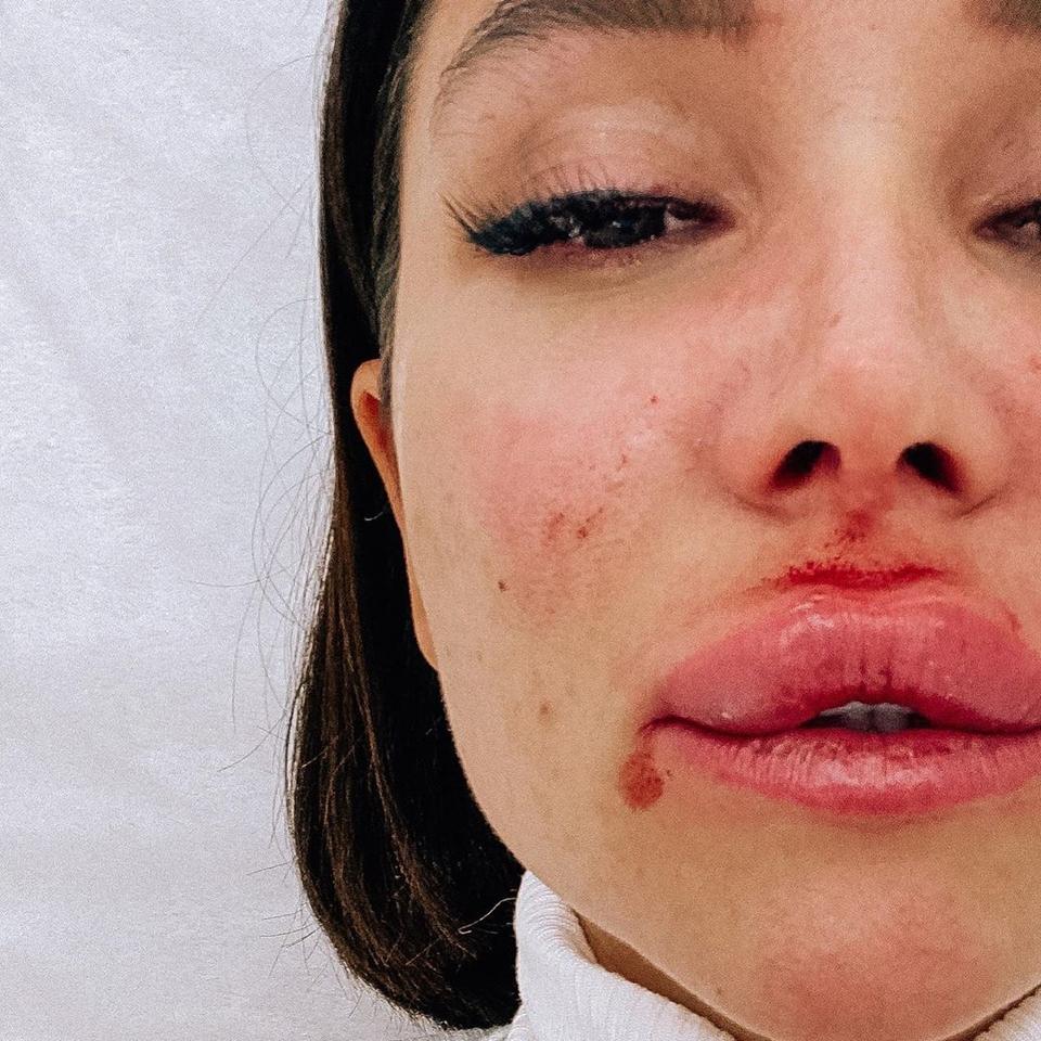Катя показала отёкшую губу Фото: Instagram